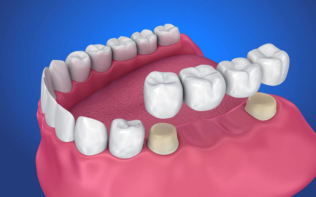 Hazards of delaying the extraction of wisdom tooth