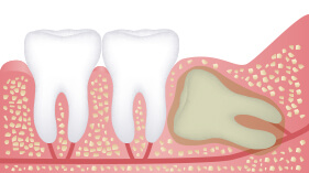 impacted wisdom teeth removal services in chatswood