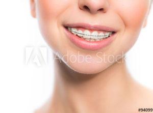 braces-wisdom teeth
