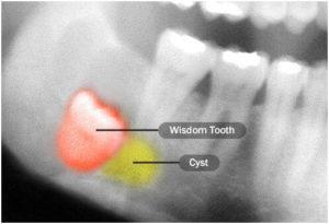 wisdom tooth cyst