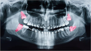 impacted-wisdom teeth