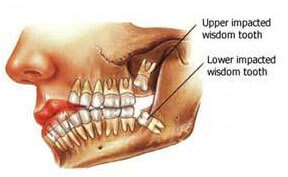 upper impacted wisdom tooth