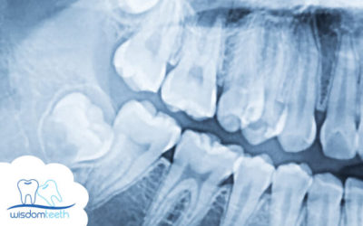 What is the Recovery Time after Wisdom Teeth Removal Surgery ?