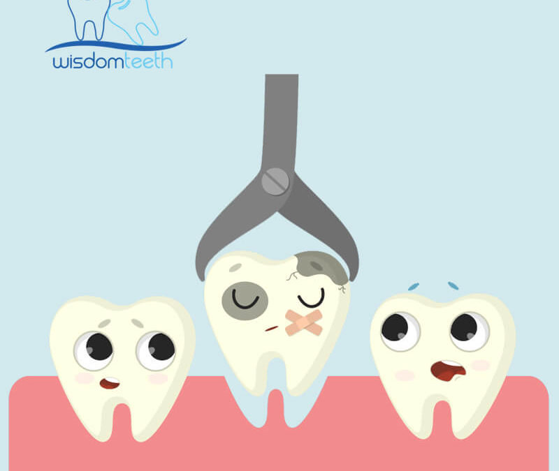 Wisdom Teeth Removal Dentist